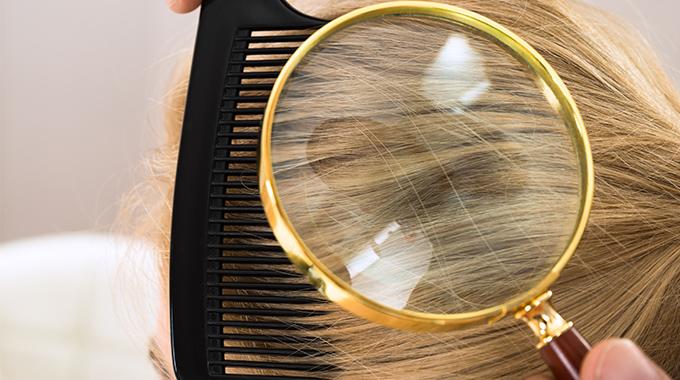 Hairvity łupież