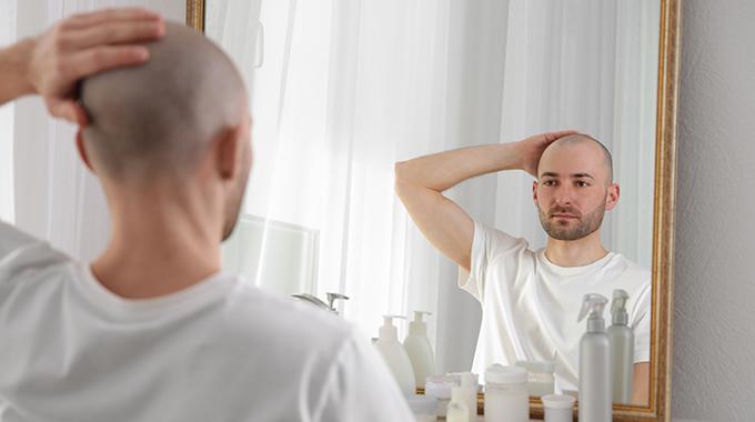 łysienie mężczyzny - Dla kogo zagęszczanie włosów metodą siateczkową?