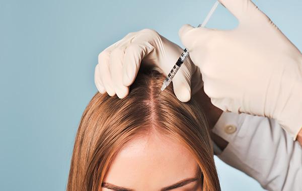 mezoterapia włosów