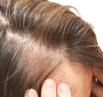 Cienkie Włosy Poznaj Sprawdzone Sposoby Ich Pielęgnacji Włosy