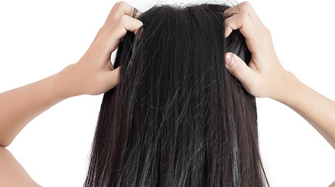 Swędząca skóra głowy