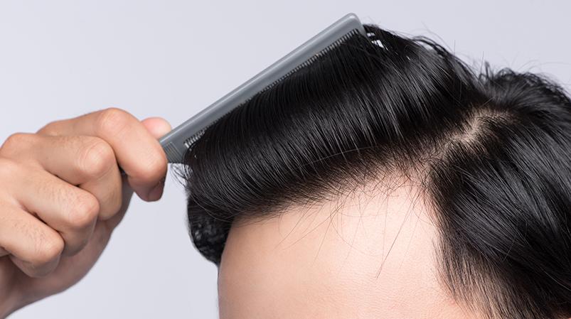 Palma sabałowa dla męskich włosów