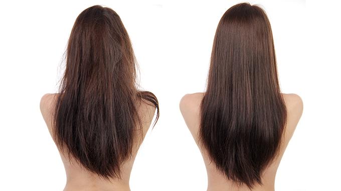 Botoks nawłosy przedipo