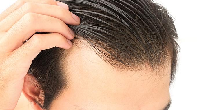 Szampon nawypadanie włosów