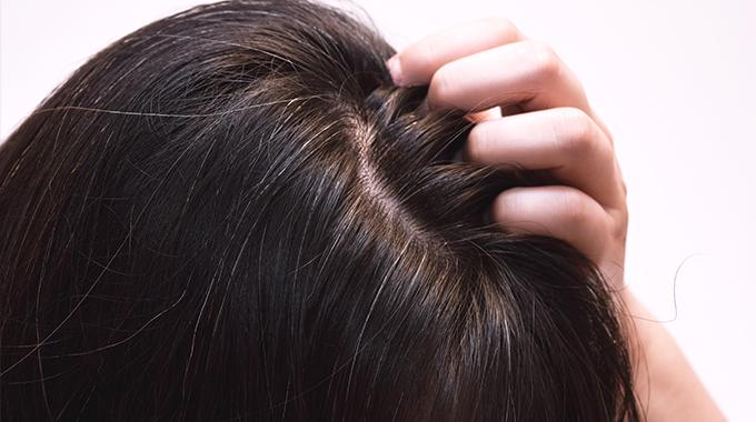 Odrosty naciemnych włosach