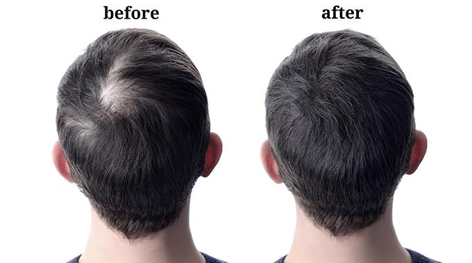 Zagęszczanie włosów mikrowłóknami